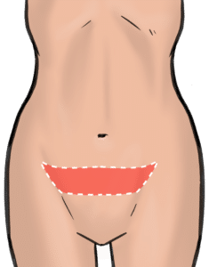 Incisions for apronectomy