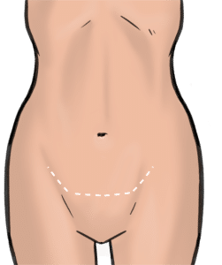 Scars from apronectomy