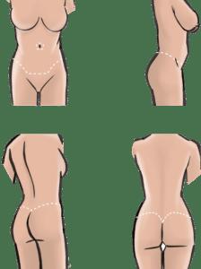 Scars from belt-lipectomy