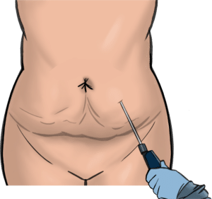 If no excess skin is present, liposuction can be used to reduce localised abdominal fat areas
