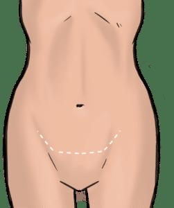 Scars for mini-abdominoplasty