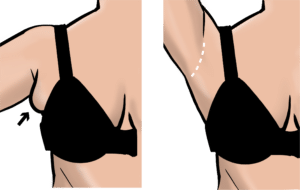 Excess tissue in the armpit can be excised, leaving a scar in the armpit