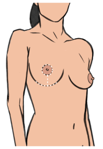 A breast implant augmentation with a lift leaves anchor shaped scars
