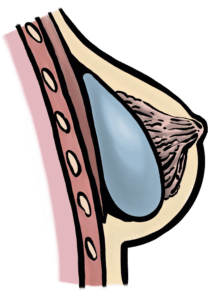 Breast implants placed over pectoralis major muscle can give more fullness