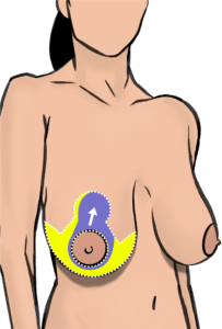 Incisions (white dotted line) for breast reduction. The blood supply to the nipple is maintained through a tissue bridge called pedicle (purple area). Skin, fat and breast tissue are removed from the yellow area.
