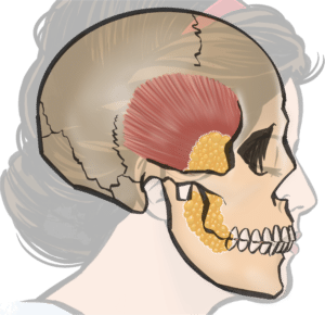 Anatomical location of buccal fat (yellow)