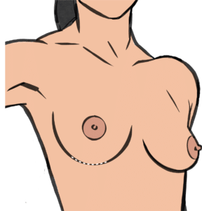 Breast implant removal leaves a scar in the breast fold