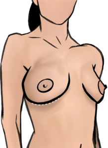 Breast implants are removed through an incision in the breast fold
