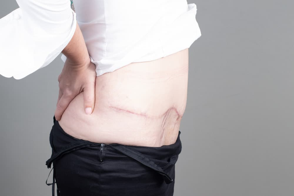 BODY-ABDOMINOPLASTY-APL-0047.After