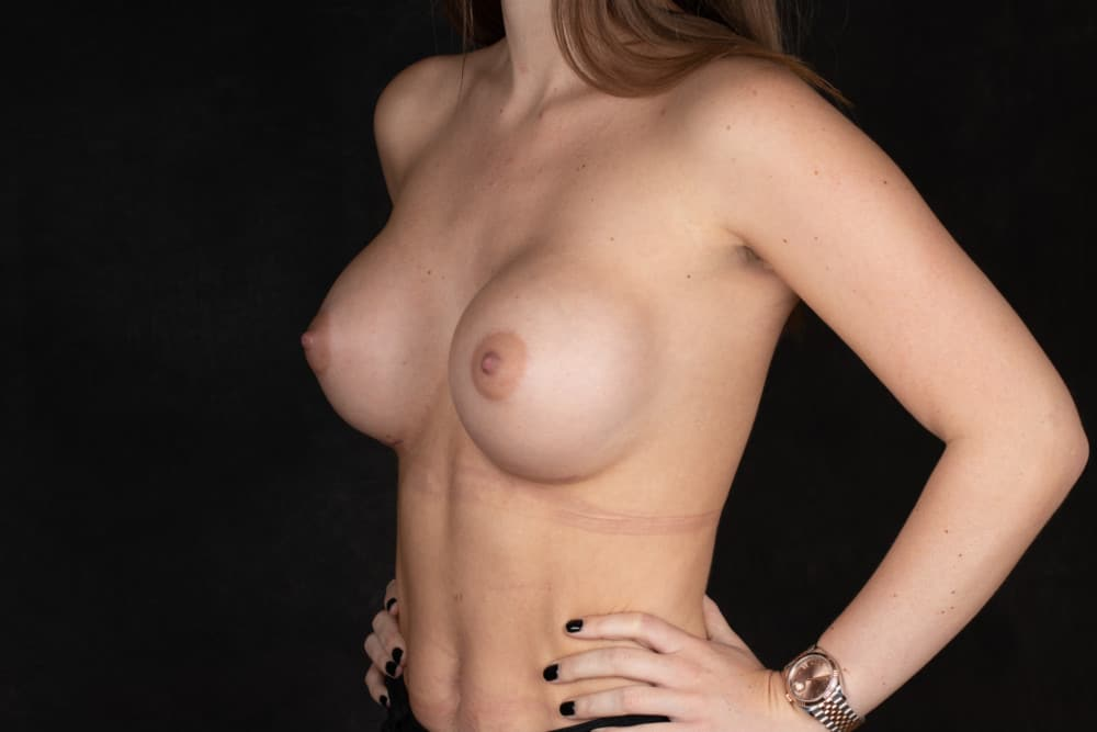 BREAST-AUGMENTATION-BBA-009.After
