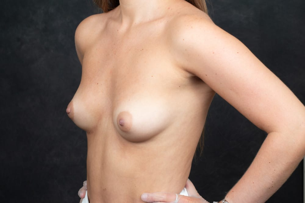 BREAST-AUGMENTATION-BBA-009.Before