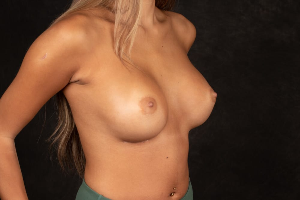 BREAST-AUGMENTATION-BBA-026.After