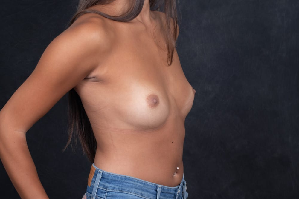 BREAST-AUGMENTATION-BBA-026.Before