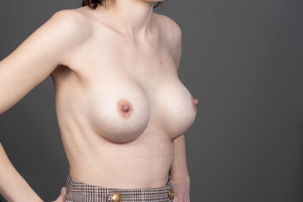 BREAST-AUGMENTATION-BBA-045.After