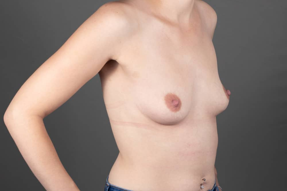 BREAST-AUGMENTATION-BBA-045.Before