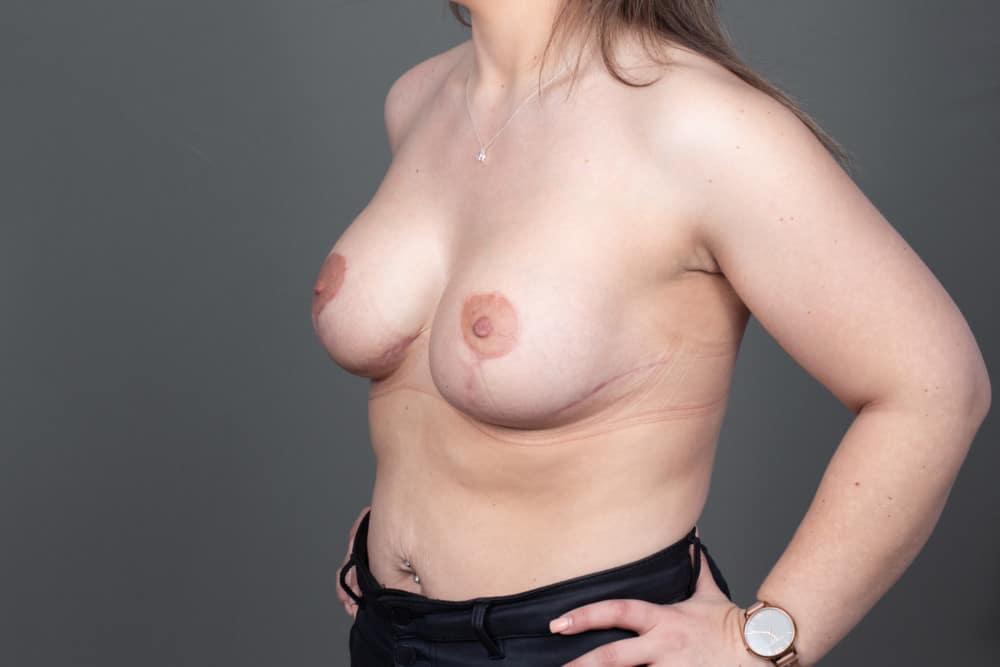 BREAST-AUGMENTATIONMASTOPEXY-BAM-039.After