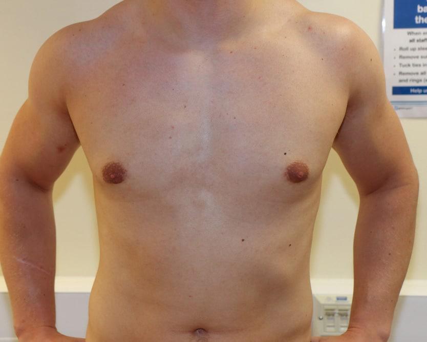 BREAST-GYNAECOMASTIA-GYN-003.After