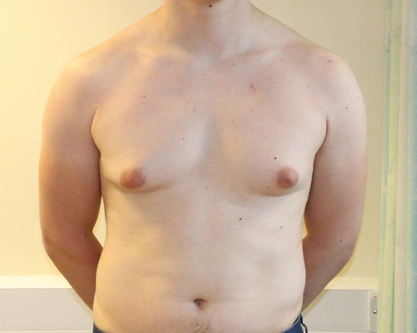 BREAST-GYNAECOMASTIA-GYN-003.Before