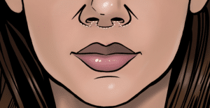 The scar from a subnasal lip lift is at the lower nasal border