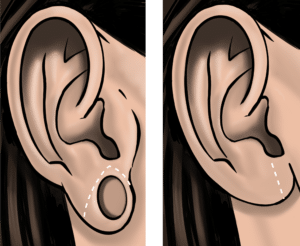 Stretched hole in ear lobes can be excised and repaired, leaving a small scar in the lower earlobe