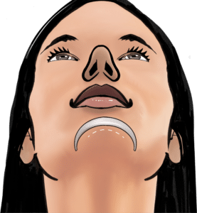 A chin implant can be inserted through an incision under the chin