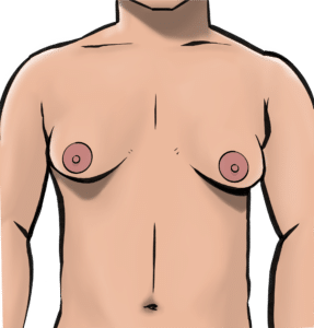 Prominent breasts in men is called gynaecomastia