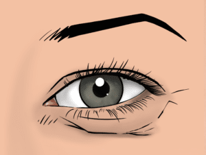 Eyebag and excess skin in the lower eyelid can be improved with a lower blepharoplasty