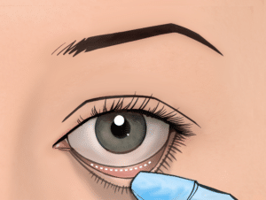 An incision inside the lower eyelid can be used to correct eyebags with no excess skin