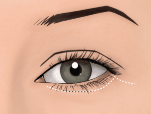 If skin is removed in a lower blepharoplasty, the scar is below the lashes