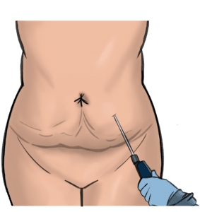 In liposuction a cannula is inserted through small holes in the skin to suck fat out
