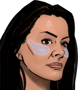 The position of cheek implants under the skin