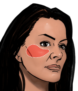 Fat transfer to the cheek can give a more youthful appearance