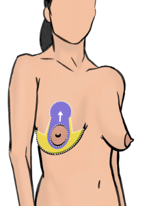 Incisions (white dotted line) for breast lift. The blood supply to the nipple is maintained through a tissue bridge called pedicle (purple area). Skin is removed from the yellow area.