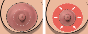 In areolar reduction a ring of outer areola is excised and the surrounding skin is stitched together