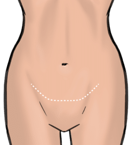 A pubic lift leaves a scar above the hairline