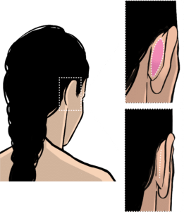 Incision and scar in prominent ear correction