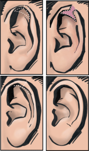 Incisions and scars to reduce large ears