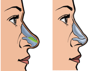 """Cartilage can be removed (""""cephalic trim"""" in green) to reduce the height of the nasal tip"""