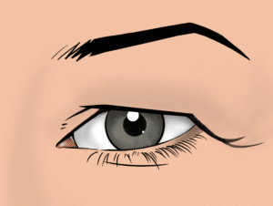 Skin hooding of the upper eyelid can be improved with an upper blepharoplasty