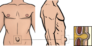 A protruding belly button usually contains fat from behind the muscle