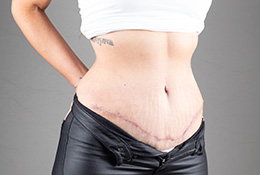 BODY-ABDOMINOPLASTY-APL-0049.After