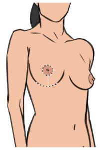 A breast implant removal with a lift leaves anchor shaped scars