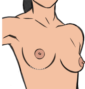 Breast implants are inserted through an incision in the breast fold