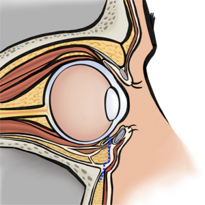 Incision inside the lower eyelids