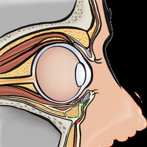 Incision under the lower eyelashes