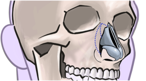 Osteotomies are cuts in the nasal bones, allowing them to be moved to the desired position.
